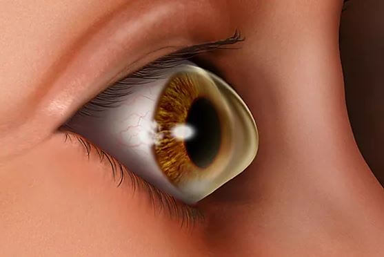 Contacts for Keratoconus miami