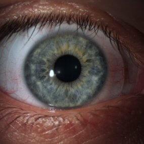scleral lenses for treating keratoconus